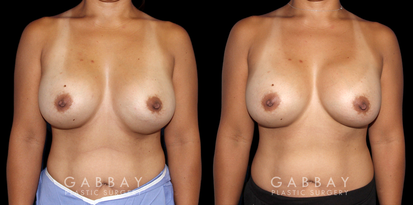 Patient 19 Front View Breast Revision Gabbay Plastic Surgery