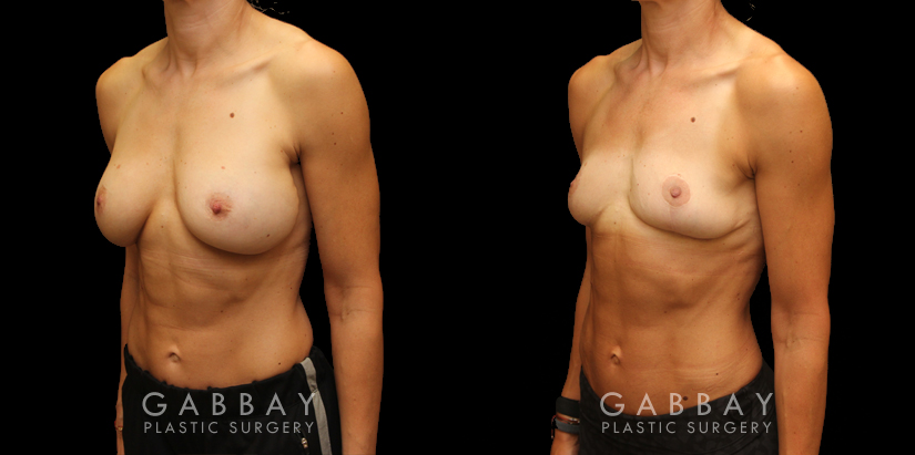 Patient 03 3/4th Left Side View Implant Removal/Mastopexy/Auto Augmentation Gabbay Plastic Surgery