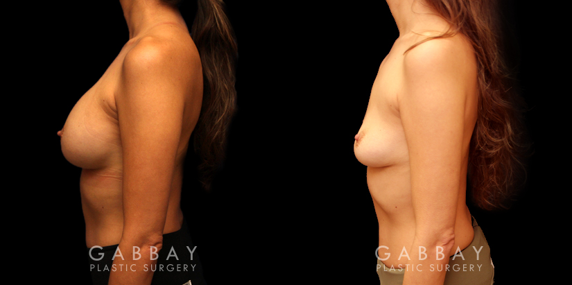 Patient 05 Left Side View Implant Removal Gabbay Plastic Surgery