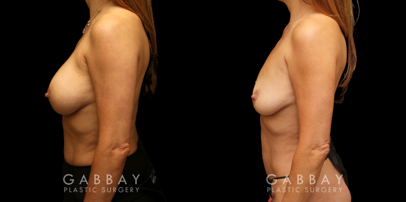 Patient 07 Left Side View Mini Tummy Tuck and Lipo to Waist Gabbay Plastic Surgery