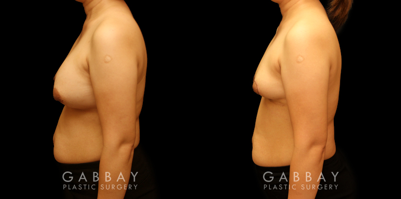 Patient 09 Left Side View Breast Implant Removal and Lift Gabbay Plastic Surgery