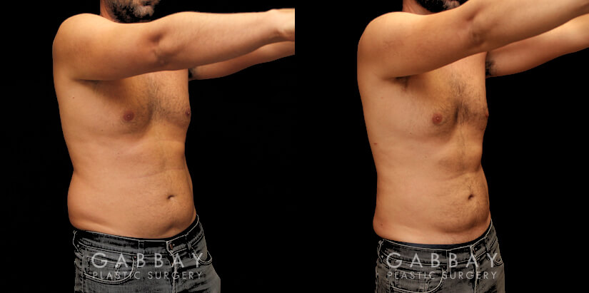 Patient 01 3/4th Right Side View Liposuction and J Plasma to Full Abdomen Gabbay Plastic Surgery