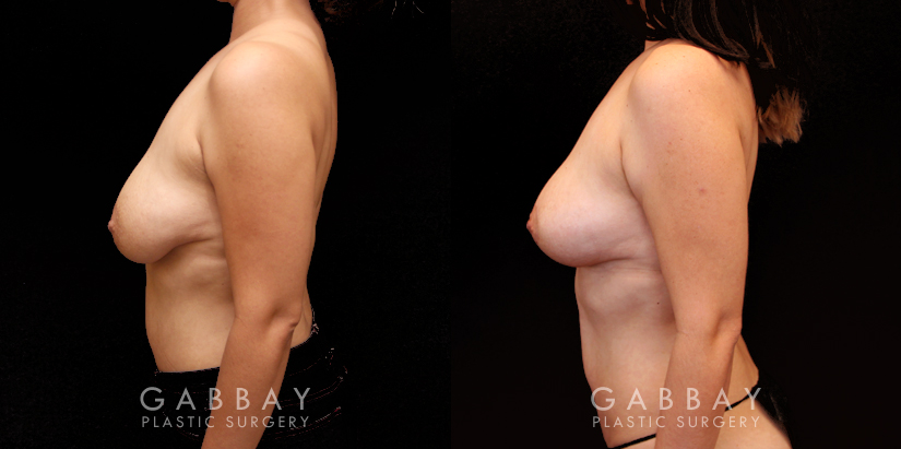 Patient 04 Left Side View Breast Lift and Auto Aug Gabbay Plastic Surgery