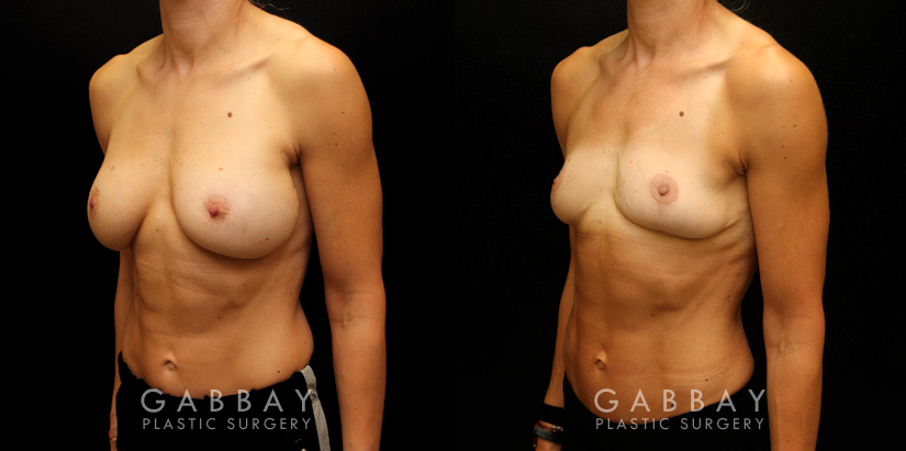 Patient 05 3/4th Left Side View Implant Removal/Mastopexy/Auto Augmentation Gabbay Plastic Surgery