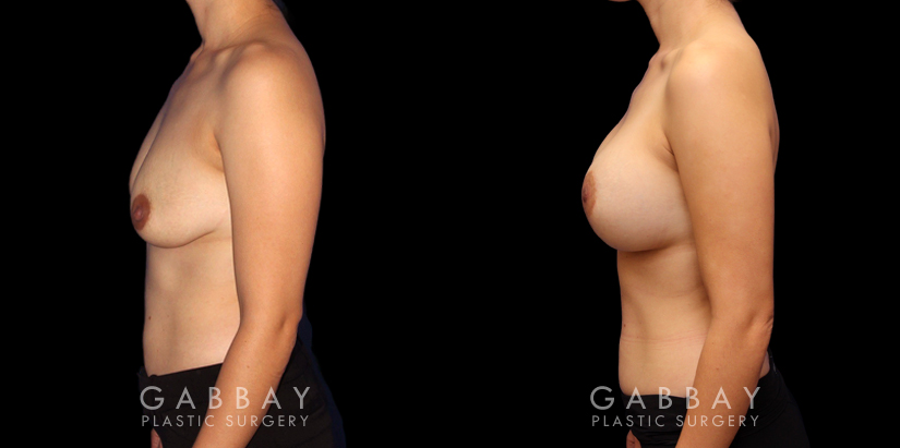 Patient 08 Left Side View Scar Revision to Breasts Gabbay Plastic Surgery