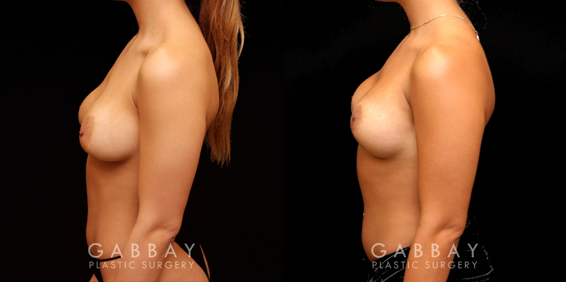 Patient 09 Left Side View Removal and Replacement of SIL Implants Capsulorrhaphy Gabbay Plastic Surgery