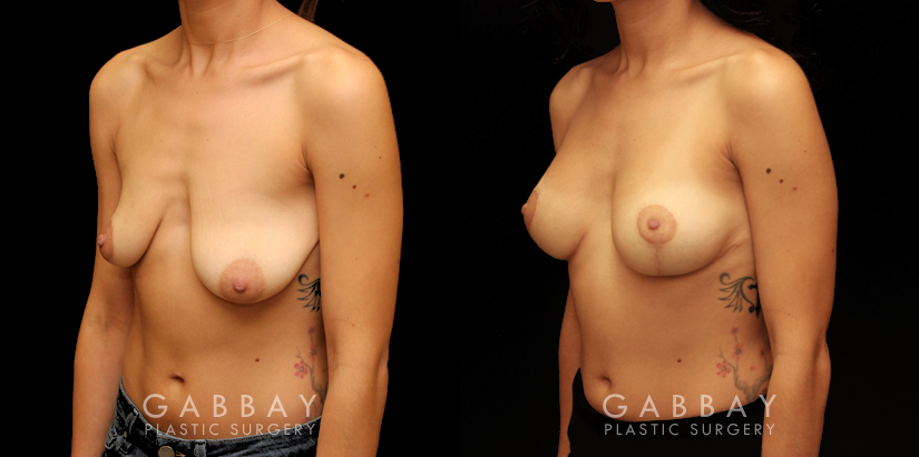 Patient 10 3/4th Left Side View Breast Augmentation Silicone & Lift Gabbay Plastic Surgery