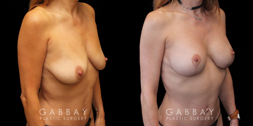 Patient 01 3/4th Right Side View Implant Removal and lift Gabbay Plastic Surgery
