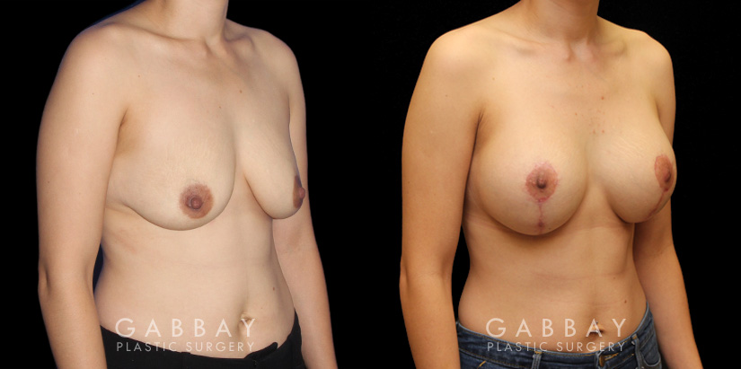 Patient 02 3/4th Right Side View Augpexy Gabbay Plastic Surgery