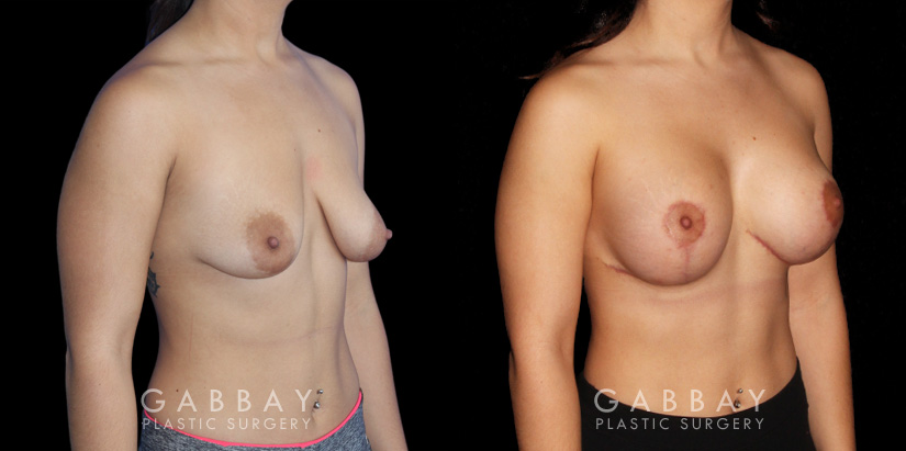 Patient 04 3/4th Right Side View Breast Augmentation w/ Mastopexy - Silicone Gabbay Plastic Surgery