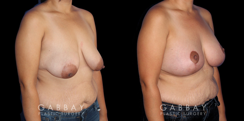 Patient 06 3/4th Right Side View Breast Augmentation - Silicone, Mastopexy Gabbay Plastic Surgery