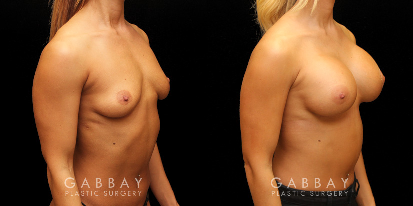 Patient 08 3/4th Right Side View Implants repeal & replacement (left) Gabbay Plastic Surgery