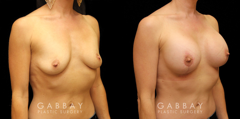 Patient 07 3/4th Right Side View Augpexy Gabbay Plastic Surgery