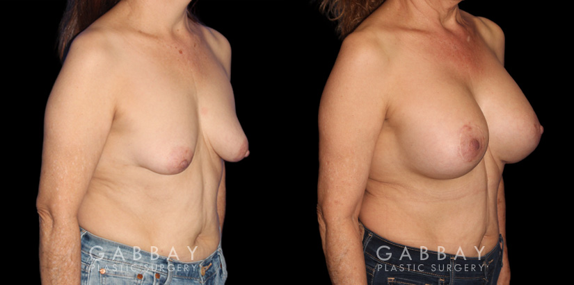 Patient 16 3/4th Right Side View Breast Augmentation w/ Mastopexy - Silicone Gabbay Plastic Surgery