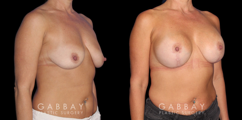 Patient 17 3/4th Right Side View Wise Mastopexy with Silicone Breast Implants Gabbay Plastic Surgery