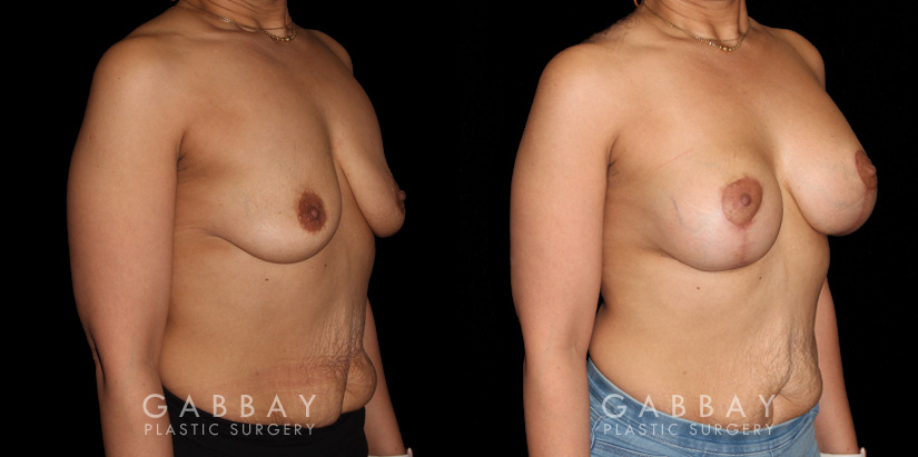 Patient 18 3/4th Right Side View Breast Augmentation - Silicone & Lift Gabbay Plastic Surgery