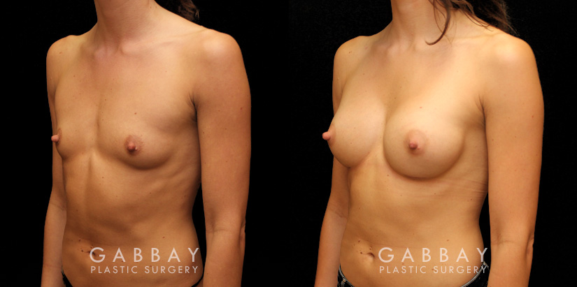 Patient 02 3/4th Left Side View Breast Augmentation Silicone Implants Gabbay Plastic Surgery