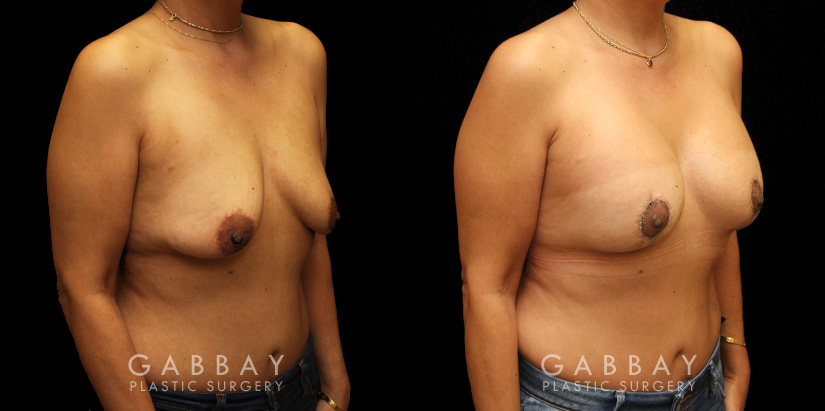 Patient 19 3/4th Right Side View Breast Aug/Pexy Gabbay Plastic Surgery