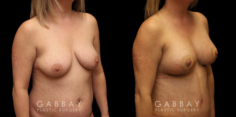 Patient 20 3/4th Right Side View Breast aug/pexy and tummy tuck Gabbay Plastic Surgery