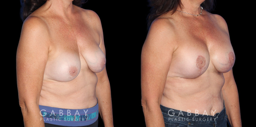 Patient 22 3/4th Right Side View R&R + Breast Lift Gabbay Plastic Surgery