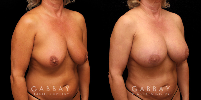 Patient 23 3/4th Right Side View Breast Aug/Pexy with Liposcution and J-plasma to the Full Abdomen and Upper Back Bra Roll Gabbay Plastic Surgery