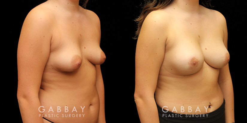 Patient 11 3/4th Right Side View Augpexy Gabbay Plastic Surgery