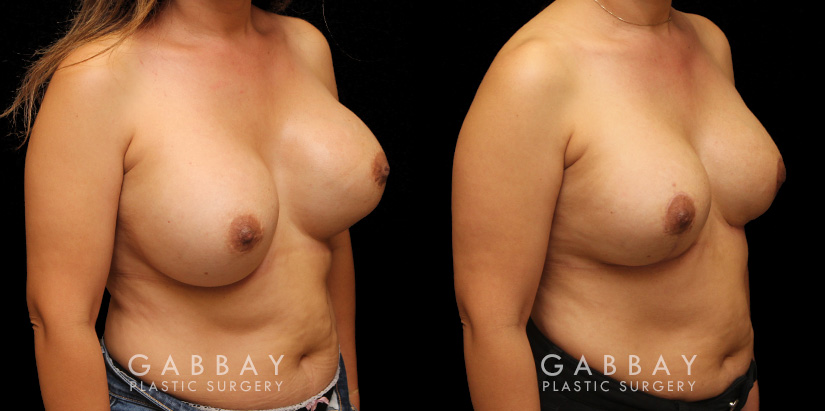 Patient 12 3/4th Right Side View Augpexy Gabbay Plastic Surgery