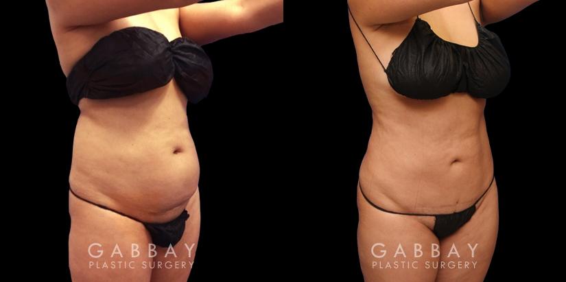 Patient 10 3/4th Right Side View Abdomen Lipo Gabbay Plastic Surgery