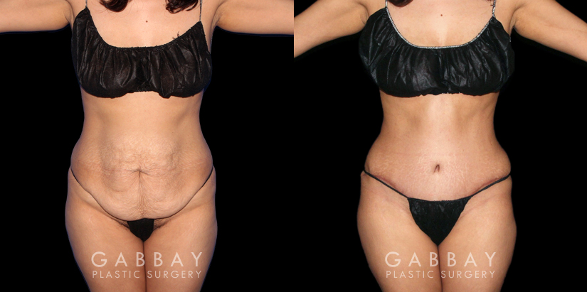Patient 18 Front View Abdominoplasty, Lipo to Waist and Arms Gabbay Plastic Surgery