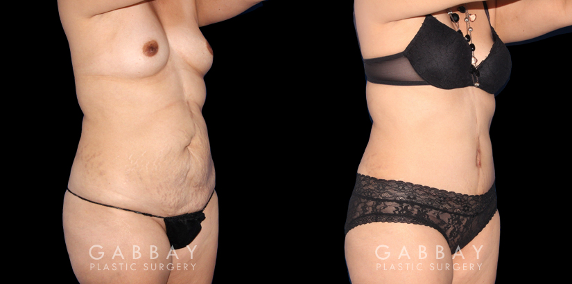 Patient 19 3/4th Right Side View Abdominoplasty Gabbay Plastic Surgery