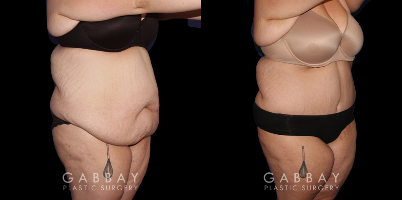 Patient 20 3/4th Right Side View Abdominoplasty Gabbay Plastic Surgery