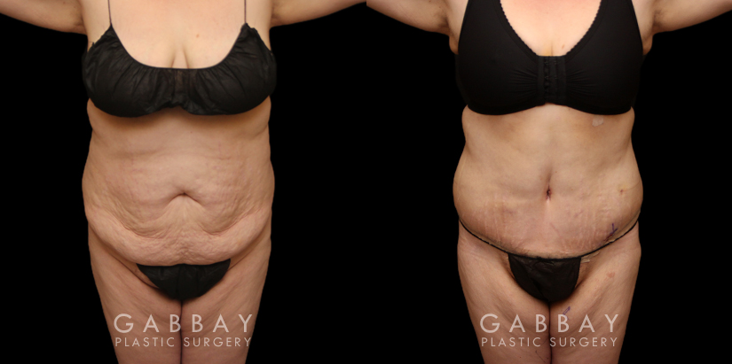 Patient 22 Front View Tummy Tuck and Breast Lift Gabbay Plastic Surgery