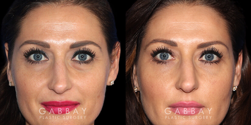 Patient 01 Front View Upper Eyelid Blepharoplasty with Fat Transfer to Face Gabbay Plastic Surgery