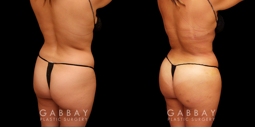 Patient 02 4/5th Right Side View Abdomen and Waist and Fat Transfer to Buttock Gabbay Plastic Surgery