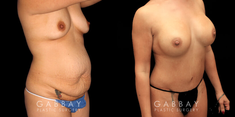 Patient 01 3/4th Right Side View Mommy Makeover Gabbay Plastic Surgery