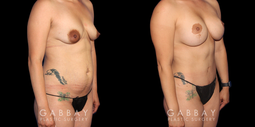 Patient 04 3/4th Right Side View Mommy Makeover Gabbay Plastic Surgery
