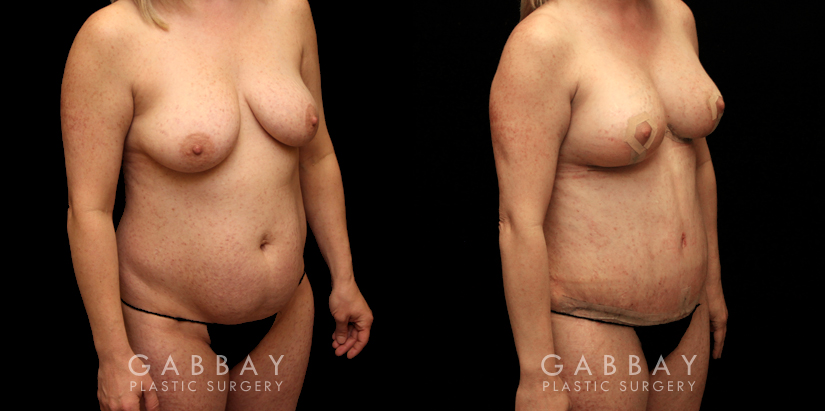 Patient 02 3/4th Right Side View Mommy Makeover Gabbay Plastic Surgery