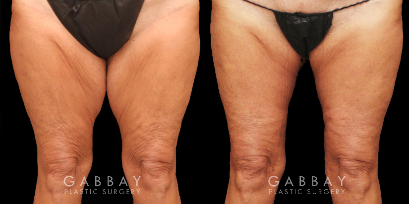 Patient 02 Front View Thighplasty and Knee Liposuction Gabbay Plastic Surgery