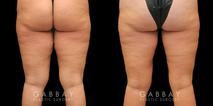 Patient 03 Back View Thigh Lift and Liposuction Gabbay Plastic Surgery
