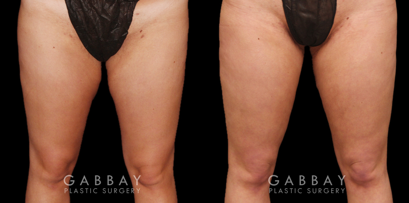 Patient 04 Front View Thigh Lift Gabbay Plastic Surgery