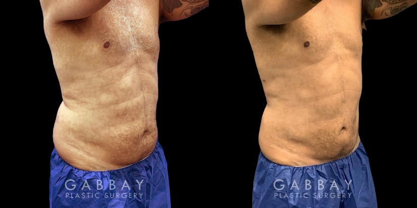 Patient 02 3/4th Right Side View Lipo Male Gabbay Plastic Surgery