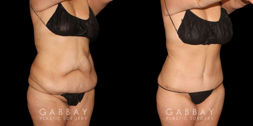 Patient 04 3/4th Right Side View Tummy Tuck with Lipo Gabbay Plastic Surgery