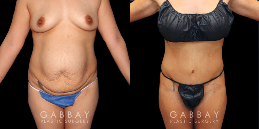 Patient 05 Front View Tummy Tuck and Hernia Repair Gabbay Plastic Surgery