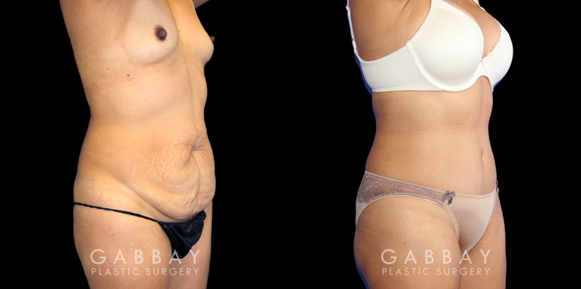 Patient 06 3/4th Right Side View Breast Augmentation Silicone, Abdominoplasty, Flank Liposuction Gabbay Plastic Surgery