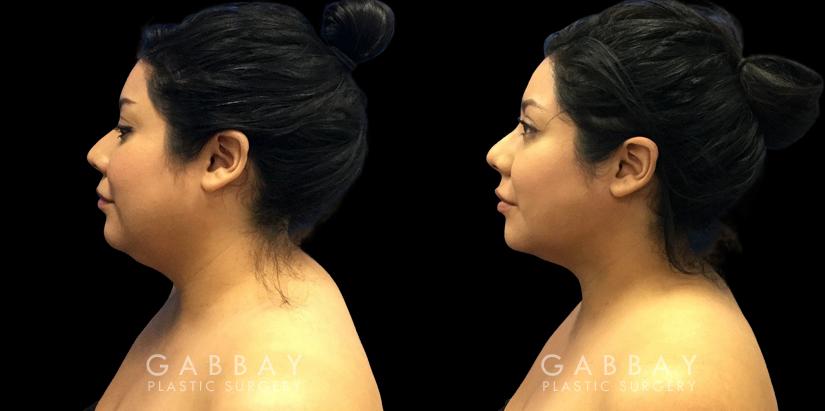 Patient 08 Left Side View Lipo Neck Gabbay Plastic Surgery