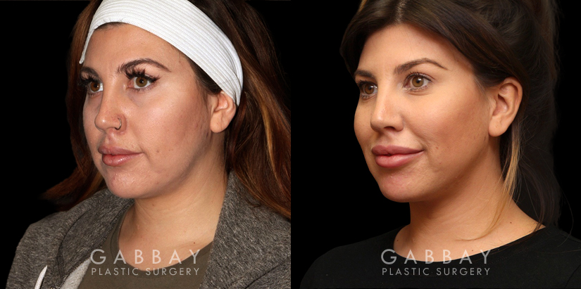 Patient 09 3/4th Left Side View Buccal Fat Pad Removal Gabbay Plastic Surgery