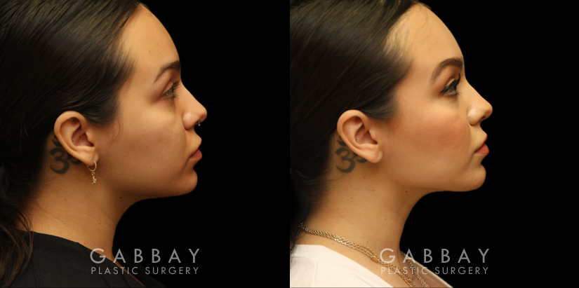 Patient 07 Right Side View Buccal Fat Removal with Lipo to Chin Gabbay Plastic Surgery