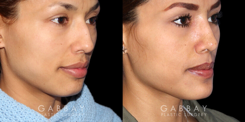 Patient 01 3/4th Right Side View Chin implant, Rhinoplasty, BAM Gabbay Plastic Surgery