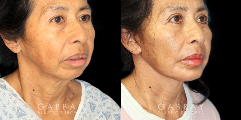 Patient 02 3/4th Right Side View Chin Implant, facelift, Bleph Gabbay Plastic Surgery