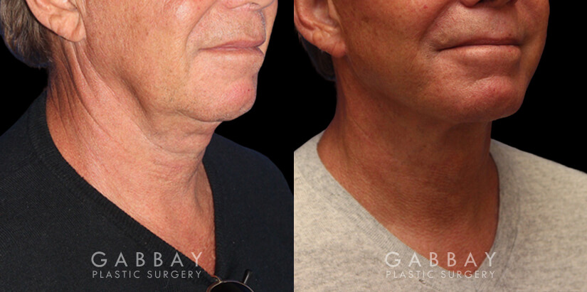 Patient 01 3/4th Right Side View facelift, full neck lift, upper blepharoplasty Gabbay Plastic Surgery